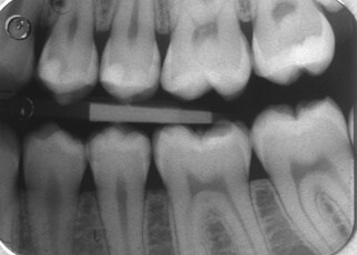 are dental bitewing x-rays safe