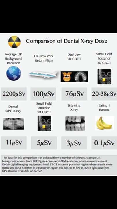 are dental x-rays safe