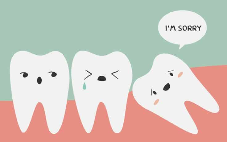 cute wisdom teeth meme
