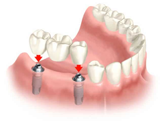 what is a dental bridge