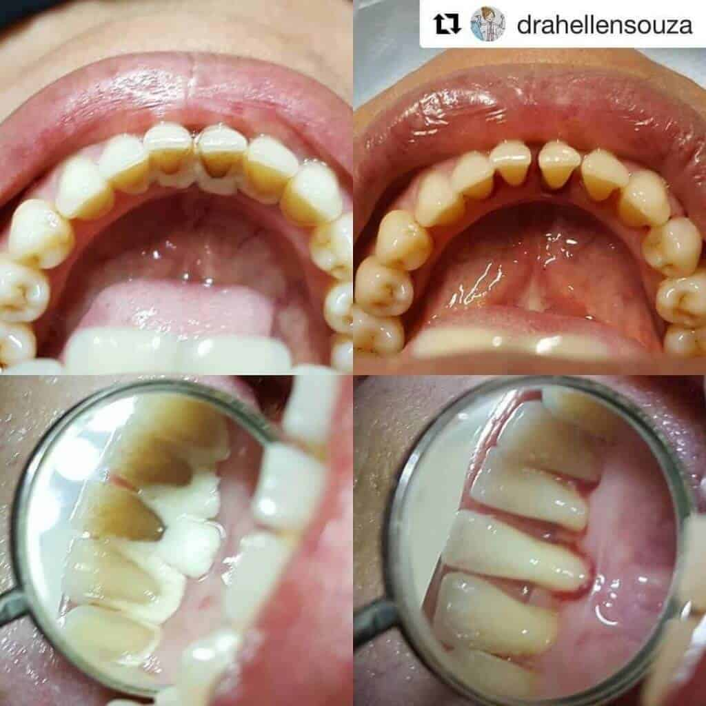 teeth cleaning before after transformation